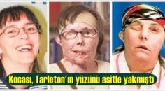 Kocası, Tarleton'ın yüzünü asitle yakmıştı